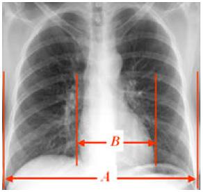 レントゲン 肺 うっ血
